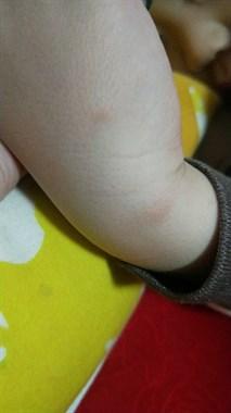 孩子皮肤满是红疹啥情况?奇痒无比像被虫咬宝妈很着急!