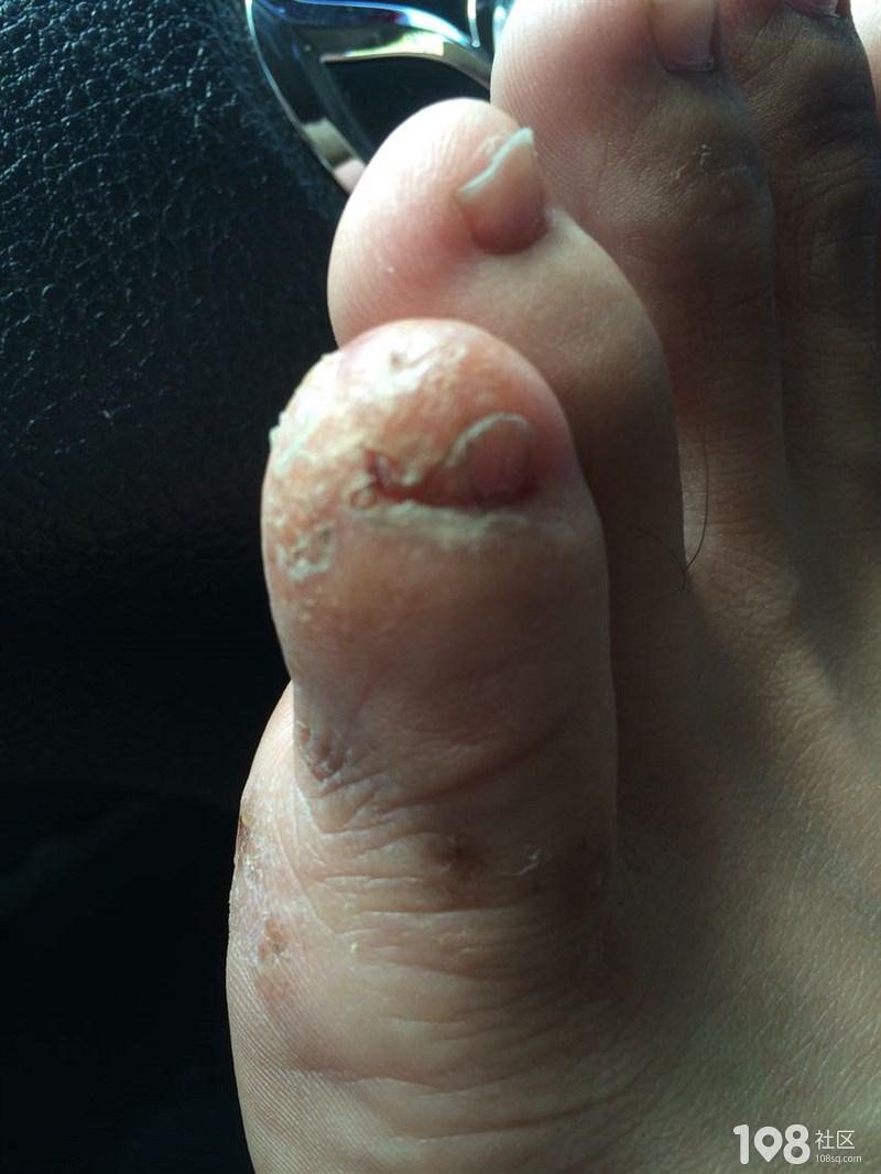 求良药 良方 一个脚趾头长水泡 痒挑穿好了样反