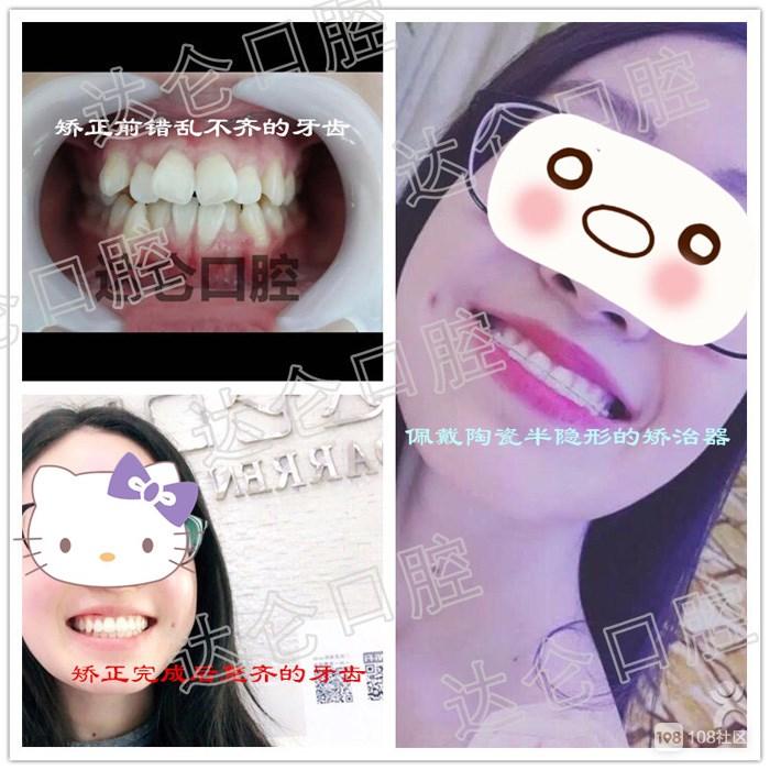 口腔牙齿矫正整形医院哪家好吗