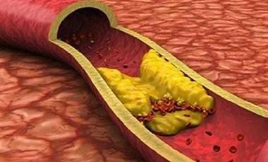 能防骨质疏松,改善血管功能,功能强大的维K,为何被忽视?