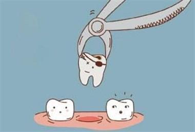 为什么,医生一般建议早上才能拔牙