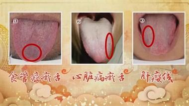 看舌头竟能预测癌症!有这两种舌象的人要小心了