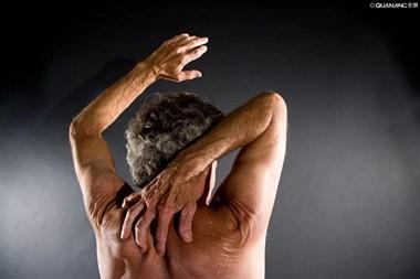皮肤瘙痒竟然暗藏肿瘤!若不是干燥引起的,千万小心这些疾病